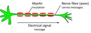 tinnitus-myelination